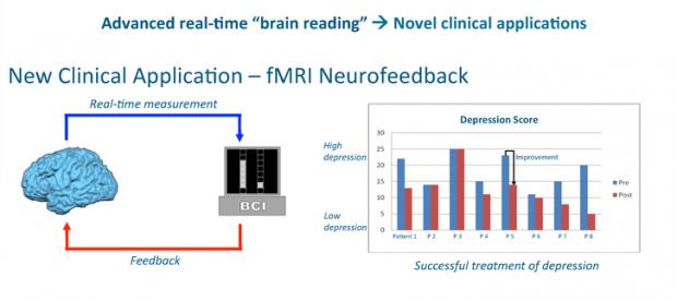 fMRI-schematic-620x276
